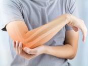 Osteoarthritis & Eggshell Membrane